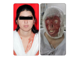 I am fundraising to help acid attack survivor Deepmala with her medical treatment