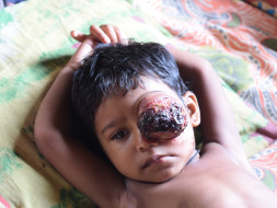 I am fundraising to treat the baby Manik Dhar who is battling with cancer