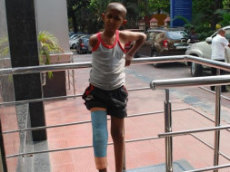Farhan Needs Your Help To Save His Leg From Cancer
