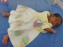 Please help treat Alagu's premature baby daughter