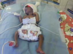 Help my premature Baby