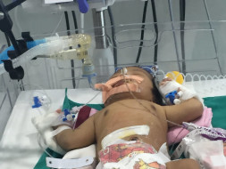 Help My Child to fight very rare disease Short Bowel Syndrome