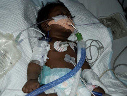 50 day Old kid with pneumonia needs money for treatment