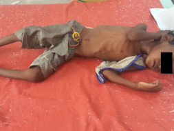 Save the lives of severely malnourished children in Bihar