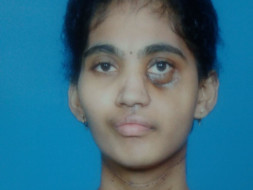Help Jyothi undergo radiotherapy