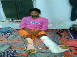 Help Aravindaraj  - Bone Surgery
