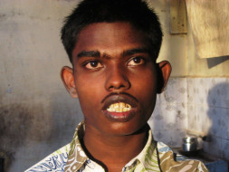 Help 1 Year Food To Rajesh With Multiple Disability