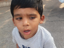 Help 4-year-old Yuvan who met with a tragic accident