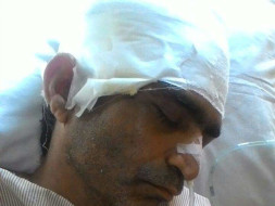 Support to Ram Ratan Who Met With a Horrible Accident