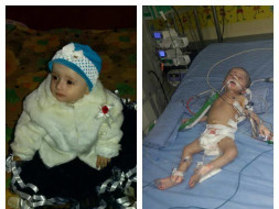Help 1-Year-Old Inaya Naaz To Fight Pulmonology Edema