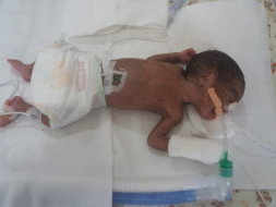 Help twin babies of Ramani get ventilator support