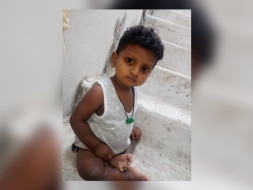 Save This Child From Serious Liver Condition