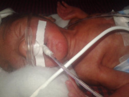 Help premature baby boy