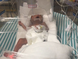 Help Baby Of Romana Parvin Get NICU Treatment