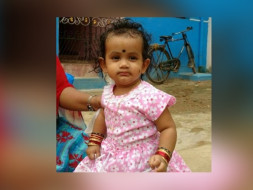 Save Baby Akshaya From Severe Scald Burns