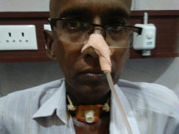 Help Narasa Reddy Afford Treatment for Throat Cancer