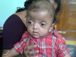 Help Vibhu Get Treated For Apert Syndrome