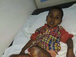 HELP BABY KARAN RECOVER FROM HIS PAIN!
