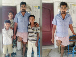 Help for Artificial  limb and Livelihood