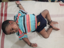 1-year-old Vignesh Has Been Suffering From Severe Diarrhea Since Birth