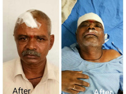 Help for Y Muthyallu double brain hemorrhage operation
