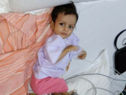 Open heart surgery for 4 months old Baby Girl Shraddha