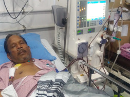 Help My Husband Undergo plasma Transplant, both kidneys failed
