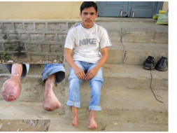 Help Feetless Yadagiri Buy Artificial Limbs