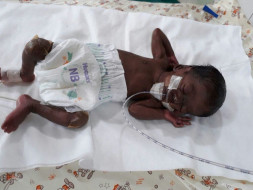 Help Twins of Amudha Get Ventilator Support