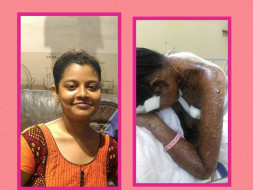Help priyanka in fighting skin disease steven johnson syndrome