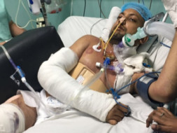 Help Kumar Anand To Fight Against A Severe Brain Injury