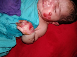 My 10-day Old daughter Is Suffering From A Skin Condition Please Help.