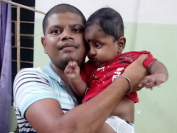 Help 5-month-old Aditya recover from swelling of the head