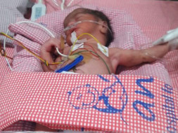 Help to Save the life of 3 weeks old premature born twins