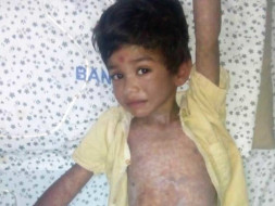 Help This 5-year-old With A Liver Abscess Who Is Screaming In Pain