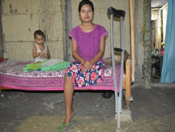 Help Jutika To Get Her Leg Back