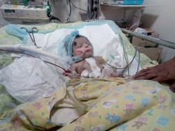 7-day-old Baby Is Braving A Heart Disorder. He Needs An Urgent Surgery