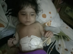 Help Yagyansh To Undergo Treatment And Lead A Normal Life