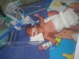 Requesting Help For Bharat's Premature Baby's Medical Expenses
