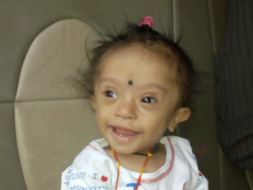 Help Baby Rudraksha For His Heart Surgery