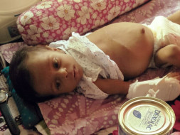 Help 6-Month Samriddho Fight A Severe Liver Disease & Bloated Stomach