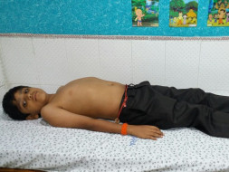 Help 13-year-old Nagendra fight end stage liver failure