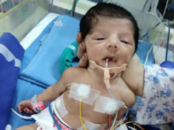*Help my cousin baby to survive*