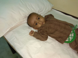 Help 10-month-old baby Masrur fight a severe heart disease