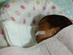 prematüre baby needs ur help