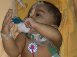 Help 9 Month Old Baby Danasri Fight Against Tracheostomy