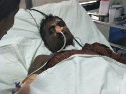 Nataraj met with an accident and is now suffering from internal damage