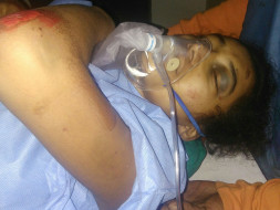 Help A Teenager Anusha Survive An Accident