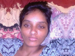 Help Swathi to fight Neuromyelitis Optica(NMO)