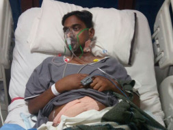Save 34-Year-Old Pradeep Kumar Undergo Kidney Transplantation